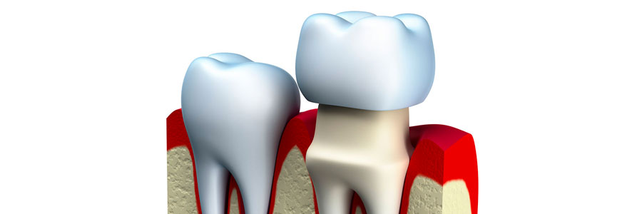 dental crown placement in delta