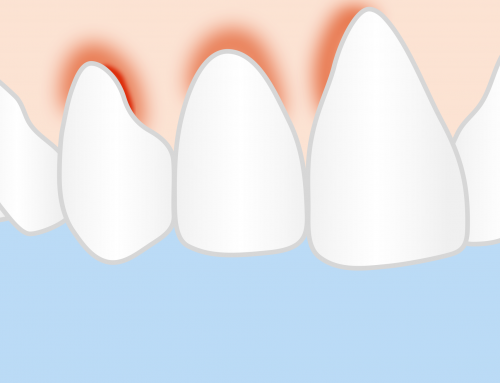 Gingivitis – What It Is and How You Can Avoid It