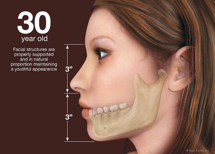 bone tooth loss