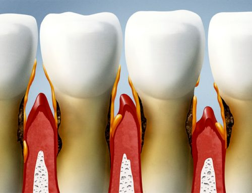 Is There a Connection Between Oral Health and Other Health Conditions?