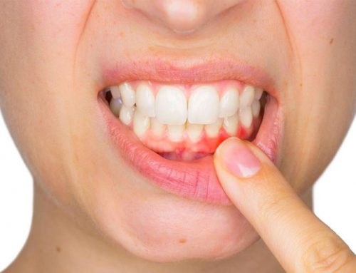 Secondhand Smoke Linked To Increased Risk Of Tooth Decay