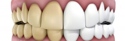 delta bc teeth discoloration